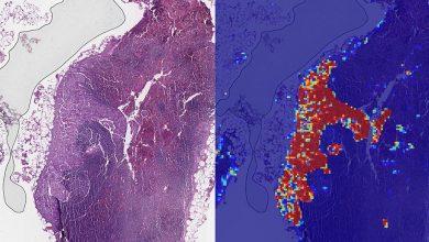 Google desarrolla un modelo de IA para identificar el cáncer de mamas
